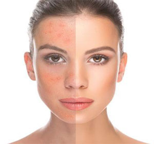 Red clover acne skin change image