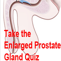 Prostate Quiz Featured